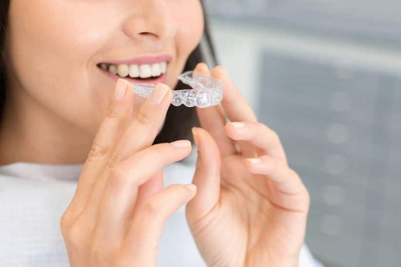 Ventajas de la ortodoncia invisible para tener la sonrisa perfecta