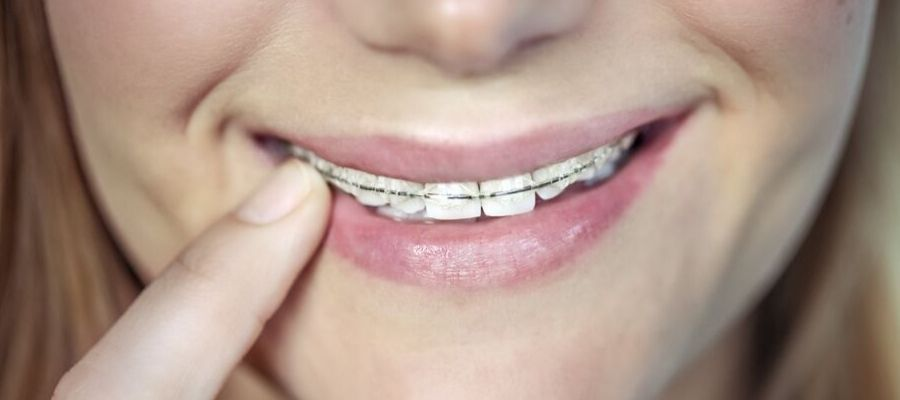 ¿Brackets o Invisaling?