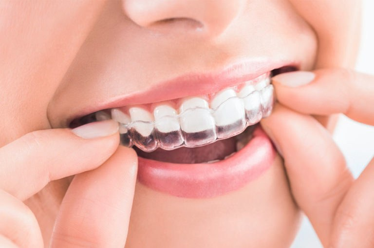 Ortodoncia estética y transparente para adolescentes y adultos
