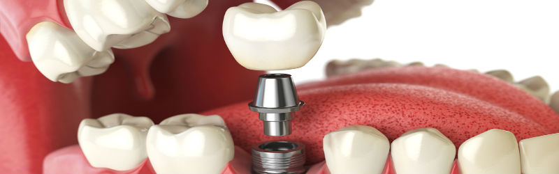 Cómo mantener tus implantes dentales