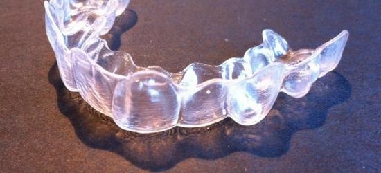 10 ventajas de Invisalign, la ortodoncia invisible