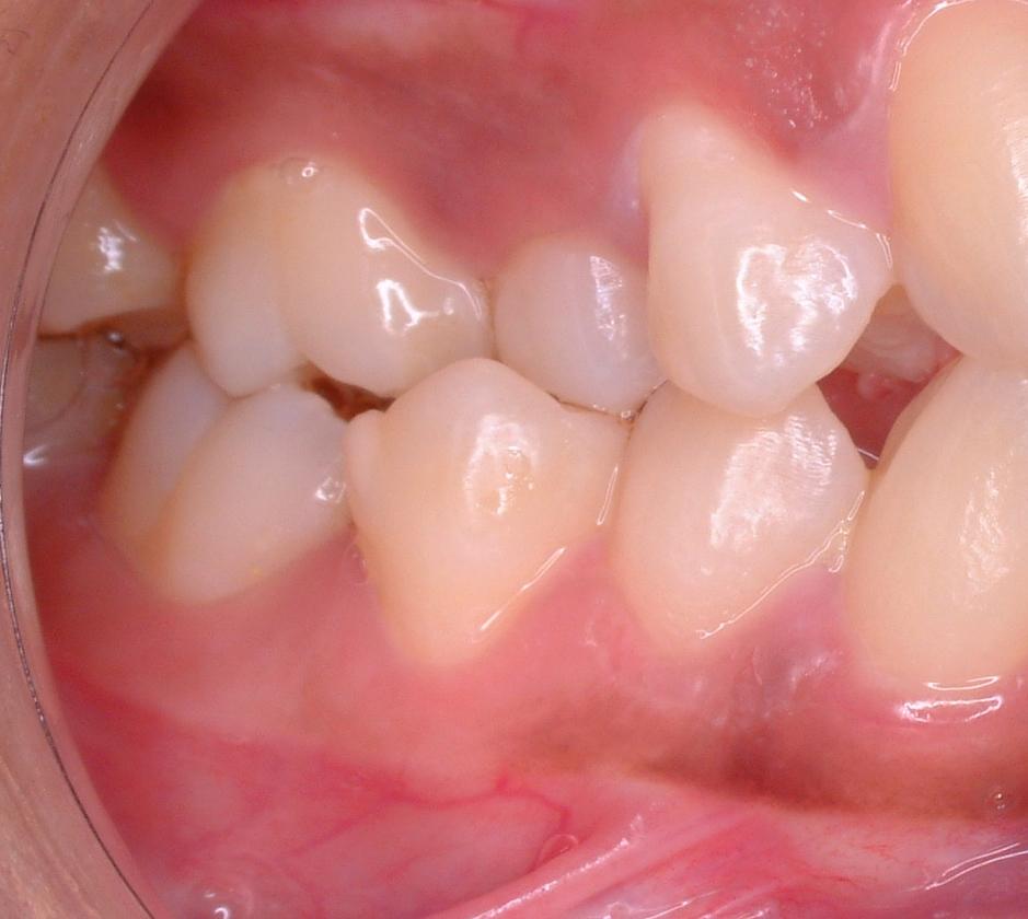 El apiñamiento dental y sus causas