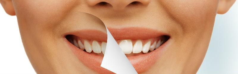 Recomendaciones sobre el blanqueamiento dental
