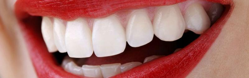 Tratamientos dentales estéticos avanzados