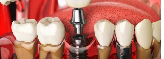 La implantología y la carga inmediata