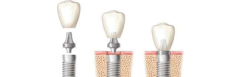 El precio de los implantes dentales en Madrid