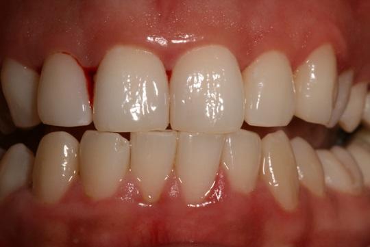 Innovaciones dentales para las enfermedades de las encías