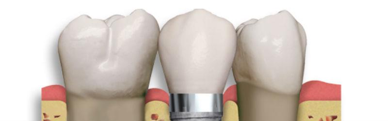 La osteointegración en los implantes dentales
