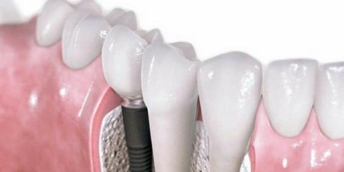 ¿Dientes nuevos en un día? Con nuestra técnica de implantes dentales ¡puedes!