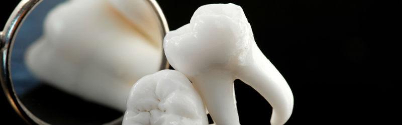 El futuro de la implantología dental
