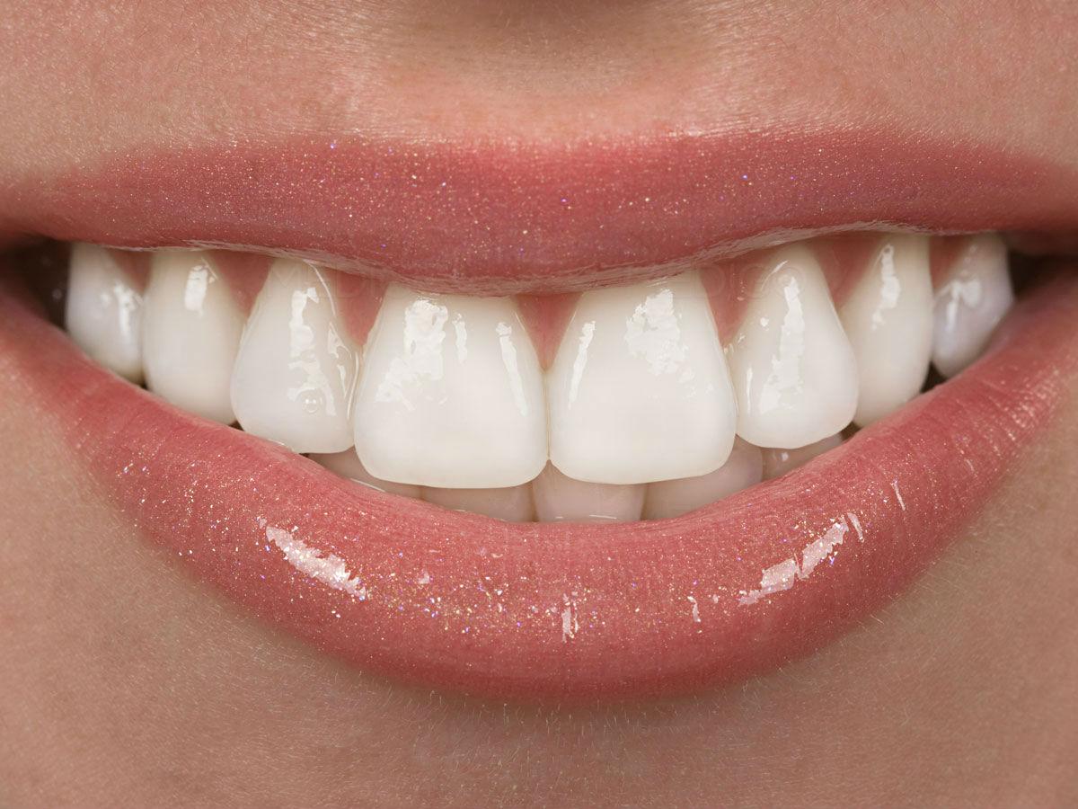 El limado de dientes para mejorar la estética dental