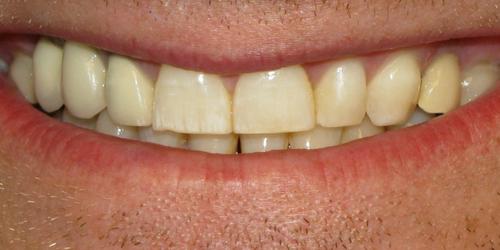 Manchas dentales por el tabaco y blanqueamiento dental