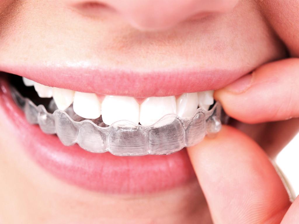 Ortodoncia invisible Invisalign, alineadores transparentes, brackets invisibles, transparent aligners, ¿Tú como los llamas?