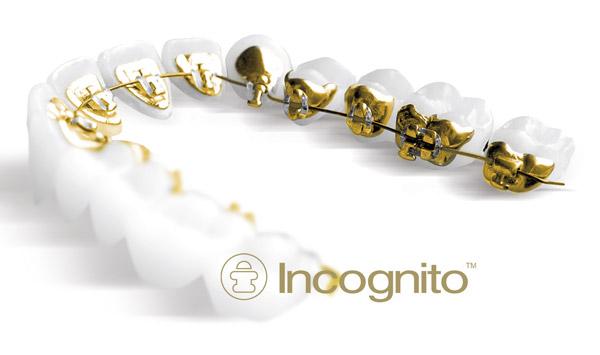 ortodoncia-lingual-incognito-madrid